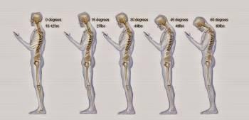 πόνοι σπονδυλικής στήλης