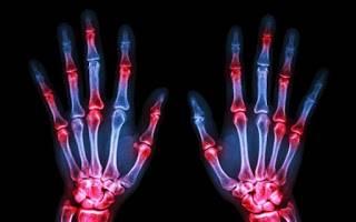 αρθρίτιδα στα δάχτυλα