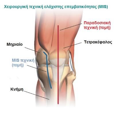 Αρθροπλαστική Γόνατος MIK