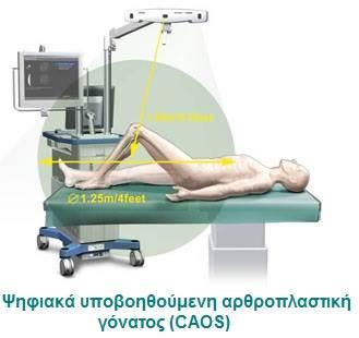 Ψηφιακά Υποβοηθούμενη Αρθροπλαστική Γόνατος