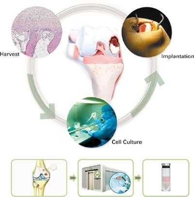 Εμφύτευση Αυτόλογων Χονδροκυττάρων