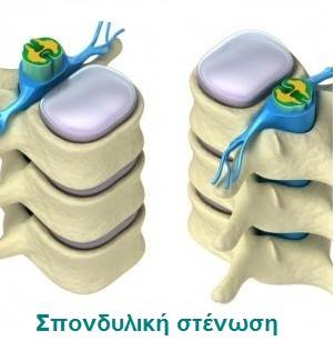 Σπονδυλική Στένωση