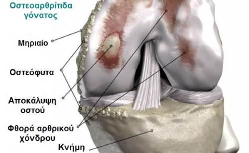Εκφυλιστική οστεοαρθρίτιδα