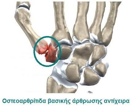 Οστεοαρθρίτιδα βασικής άρθρωσης αντίχειρα