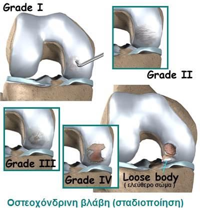 Οστεοχόνδρινες βλάβες