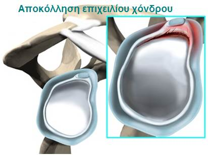 Αποκόλληση επιχείλιου χόνδρου (Labral Tear)
