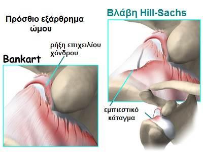 Βλάβη Hill-Sachs