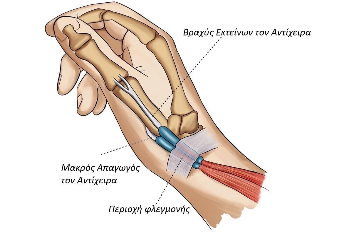 στενωτική τενοντοελυτρίτιδα De Quervain